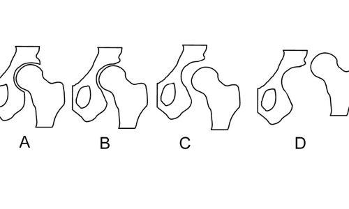 Διάφοροι τύποι δυσπλασίας.