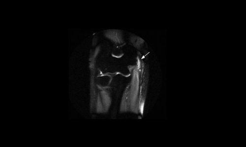 Μαγνητική τομογραφία αγκώνα. Το βέλος δείχνει το οίδημα στην περιοχή έκφυσης των τενόντων.