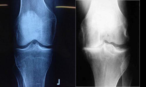 Αριστερά ακτινολογική εικόνα μη αρθριτικού γόνατος / δεξια ακτινολογική εικόνα αρθρίτιδας.
