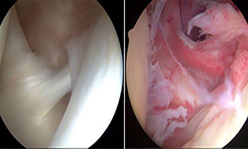 Αριστερά βλέπουμε τη φυσιολογική εικόνα μιας άρθρωσης (όπως φαίνεται με το αρθροσκόπιο), ενώ δεξιά βλέπουμε εικόνα θυλακίτιδας