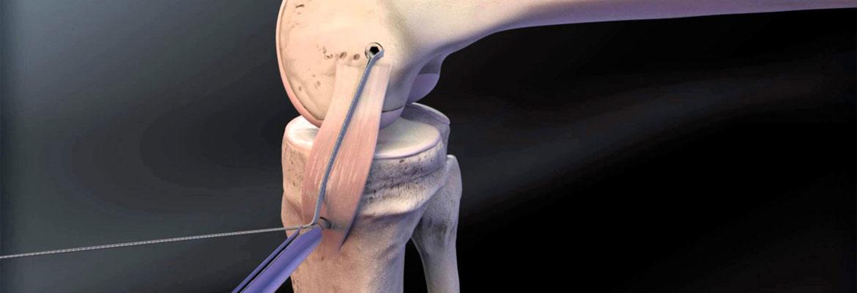 Ρήξη έσω πλαγίου συνδέσμου γόνατος