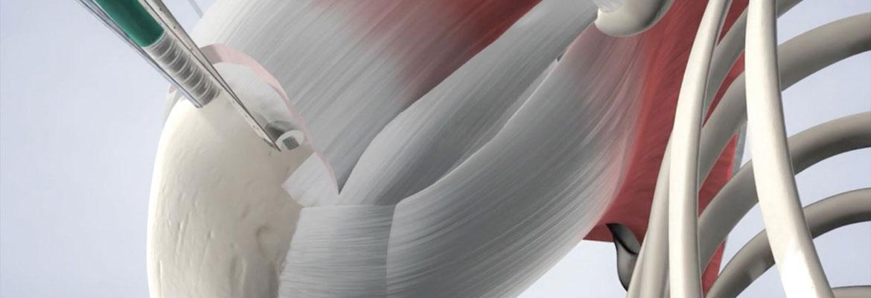 Ρήξη στροφικού πετάλου του ώμου