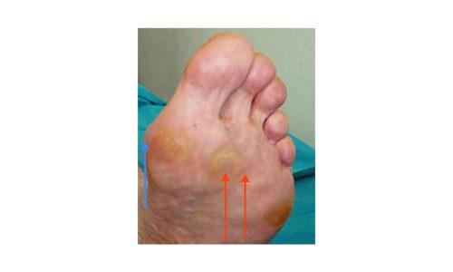 Το μπλε βέλος δείχνει την περιοχή πόνου της θυλακίτιδας - τα κόκκινα βέλη δείχνουν την περιοχή της μεταταρσαλγίας.